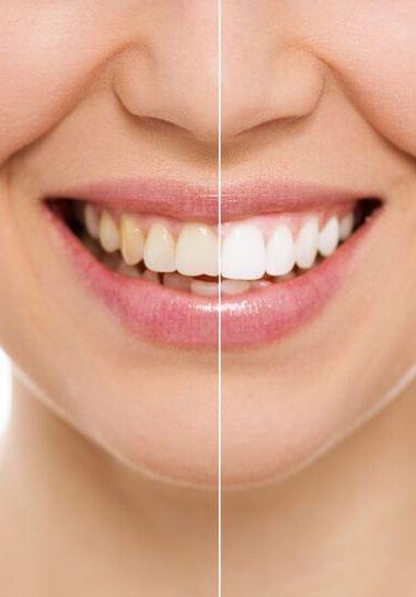 Hampaiden kotivalkaisu