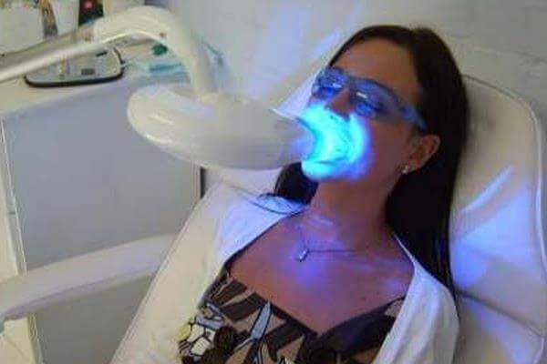 Hampaiden laser valkaisu
