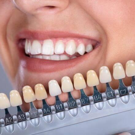 Valkoiset hampaath jälkeen